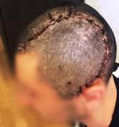 Нейрохирурги Нальчика «закрыли» отверстие в черепе пациента  диаметром 15 см