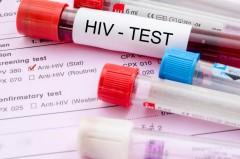 Эксперт: ВИЧ стал самой смертоносной инфекцией в России