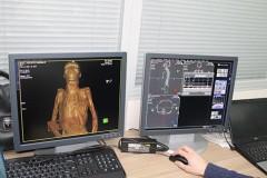 В Эрмитаже впервые провели томографию двух алтайских мумий