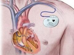 В Краснодаре установили кардиостимулятор беременной пациентке
