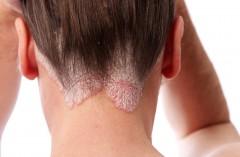В Краснодаре обсудили эффективные инновационные решения в терапии псориаза