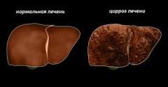 В США нашли способ избежать цирроза и рака печени