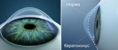 Клиника «Три-З» объявляет о запуске нового метода коррекции зрения