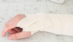 Сочинские спасатели оказали помощь туристу с травмой руки