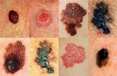 В Краснодаре проведут бесплатные обследования на меланому кожи