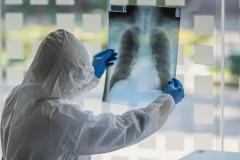 Минздрав зафиксировал вспышки коронавируса в 11 регионах России