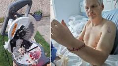 Британец случайно отпилил себе руку, но ее пришили медики