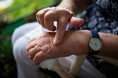 Создана первая вакцина против ревматоидного артрита