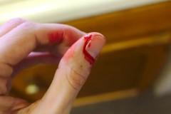 В Кисловодске мужчина нанес ножевые ранения двум молодым людям на улице