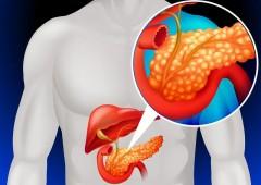 Хронический панкреатит назван основным фактором риска развития рака поджелудочной железы