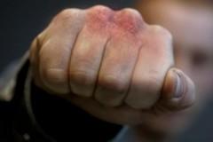 В Кореновске ревнивый мужчина до смерти избил сожительницу
