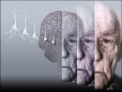 В Туапсинском районе отметят день болезни Альцгеймера