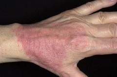 Очередное занятие «Школы атопического дерматита» состоялось в краснодарском кожвендиспансере