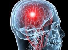 Разработана капсула-ловушка для лечения инсульта и травмы спинного мозга