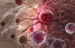 Названа главная причина развития неизлечимого рака